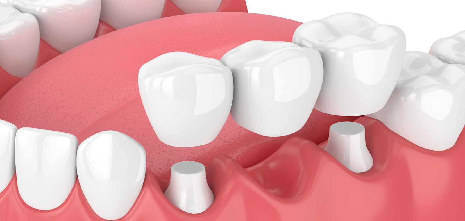 Clinica Dental Mediterrani | Puentes fijos